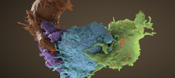 3D structure of HIV infected (blue, green) and uninfected (brown, purple) T cells interacting
